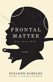 FRONTAL MATTER by Suzanne Samples